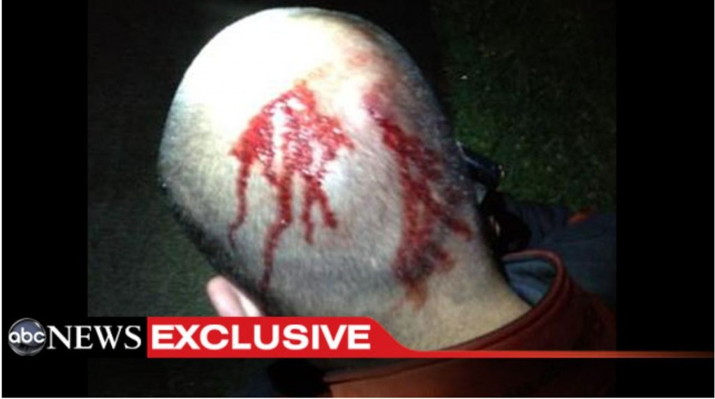 George Zimmerman&#039;s Bloody Head Photo